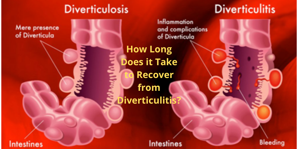 How Long Does it Take to Recover from Diverticulitis